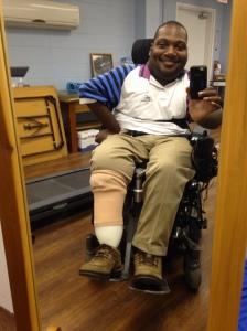New prosthetic on left leg